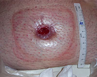 Stoma retraction